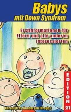 Babys mit Down-Syndrom
