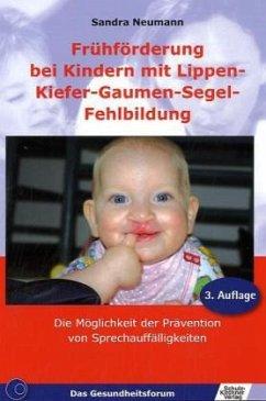 Frühförderung bei Kindern mit Lippen-Kiefer-Gau...