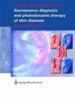 Fluorescence Diagnosis and Photodynamic Therapy of Skin Diseases - Fritsch, Clemens; Ruzicka, Thomas