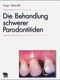 Die Behandlung schwerer Parodontitiden