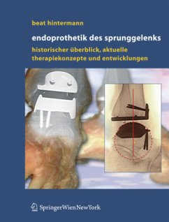 Endoprothetik des Sprunggelenks - Hintermann, Beat