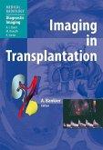 Imaging in Transplantation