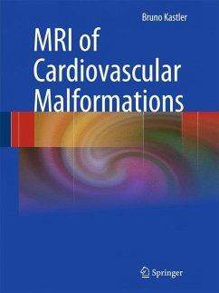 MRI of Cardiovascular Malformations - Kastler, Bruno (Hrsg.)