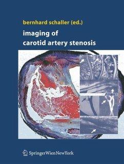 Imaging of Carotid Artery Stenosis - Schaller, Bernhard (ed.)