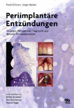 Periimplantäre Entzündungen - Schwarz, Frank; Becker, Jürgen