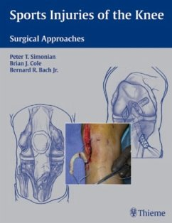 Sports Injuries of the Knee: Surgical Approaches - Simonian, Peter T.; Cole, Brian J.; Bach, Bernard R.