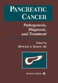 Pancreatic Cancer: Pathogenesis, Diagnosis, and Treatment