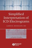 Simplified Interpretation Electrograms