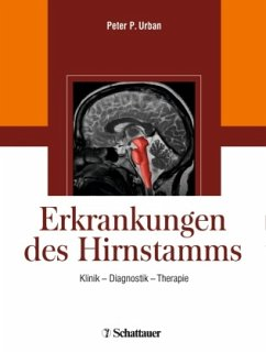 Erkrankungen des Hirnstamms - Urban, Peter P. (Hrsg.)