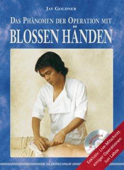 Das Phänomen der Operation mit blossen Händen