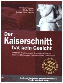 Der Kaiserschnitt hat kein Gesicht - Fotobuch, ...