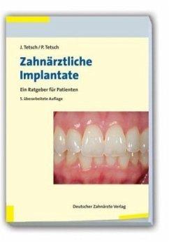 Zahnärztliche Implantate - Tetsch, Jan;Tetsch, Peter