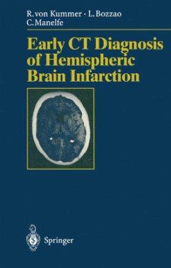 Early CT Diagnosis of Hemispheric Brain Infarction - Kummer, Rüdiger von; Bozzao, Liugi; Manelfe, Claude