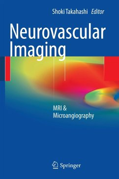 Neurovascular Imaging - Takahashi, Shoki (Hrsg.)