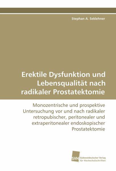 Radikaler Prostatektomie Sex nach