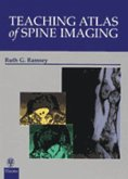 Teaching Atlas of Spine Imaging