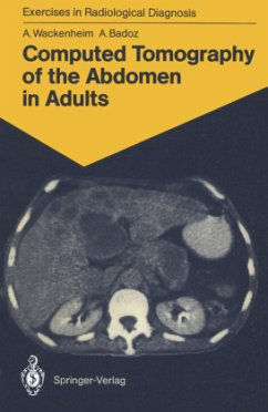 Computed Tomography of the Abdomen in Adults - Wackenheim, Auguste; Badoz, Armelle