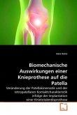 Biomechanische Auswirkungen einer Knieprothese auf die Patella