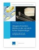 Allogene Knochenblöcke in der zahnärztlichen Implantologie