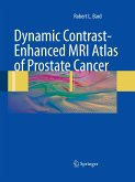 Dynamic Contrast-Enhanced MRI Atlas of Prostate Cancer