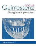 Quintessenz FOCUS Navigierte Implantation