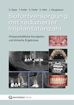 Sofortversorgung mit reduzierter Implantatanzahl