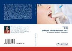 Science of Dental Implants