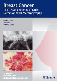 Breast Cancer (eBook, PDF) - Dean, Peter B.; Tot, Tibor; Tabar, Laszlo
