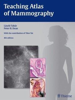 Teaching Atlas of Mammography - Tabar, Laszlo; Dean, Peter B.; Tot, Tibor