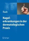 Nagelerkrankungen in der dermatologischen Praxis