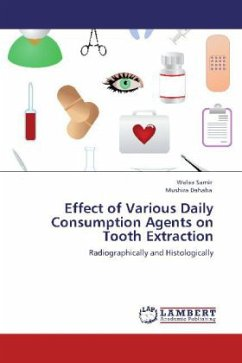 Effect of Various Daily Consumption Agents on Tooth Extraction