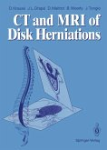 CT and MRI of Disk Herniations