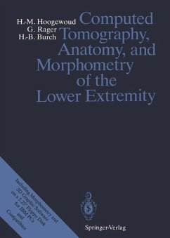 Computed Tomography, Anatomy, and Morphometry of the Lower Extremity - Hoogewoud, Henri-Marcel; Rager, Günter; Burch, Hans-Beat