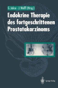 Endokrine Therapie des fortgeschrittenen Prostatakarzinoms