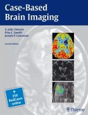 Case-Based Brain Imaging