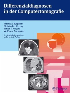 Differentialdiagnosen in der Computertomografie (eBook, PDF) - Burgener, Francis A.; Herzog, Christopher; Meyers, Steven; Zaunbauer, Wolfgang