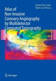 Atlas of Non-Invasive Coronary Angiography by Multidetector Computed Tomography (eBook, PDF)