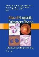 Atlas of Neoplastic Pulmonary Disease (eBook, PDF)