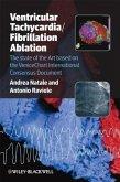 Ventricular Tachycardia / Fibrillation Ablation (eBook, PDF)