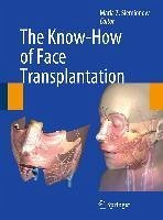 The Know-How of Face Transplantation (eBook, PDF)