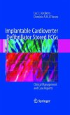 Implantable Cardioverter Defibrillator Stored ECGs (eBook, PDF)