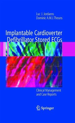 Implantable Cardioverter Defibrillator Stored ECGs (eBook, PDF) - Theuns, Dominic A. M. J.; Jordaens, Luc J.