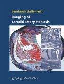 Imaging of Carotid Artery Stenosis (eBook, PDF)