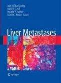 Liver Metastases (eBook, PDF)