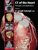 CT of the Heart (eBook, PDF)