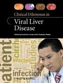 Clinical Dilemmas in Viral Liver Disease (eBook, PDF)