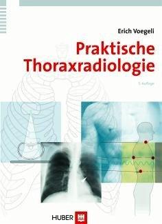 Praktische Thoraxradiologie (eBook, PDF) - Voegeli, Erich