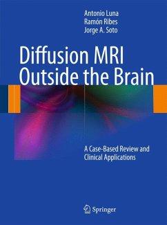 Diffusion MRI Outside the Brain (eBook, PDF) - Ribes, Ramón; Soto, Jorge A.; Luna, Antonio