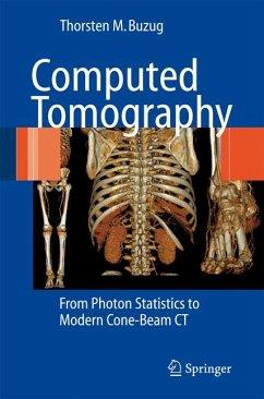 Computed Tomography (eBook, PDF) - Buzug, Thorsten M.