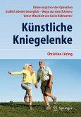 Künstliche Kniegelenke (eBook, PDF)